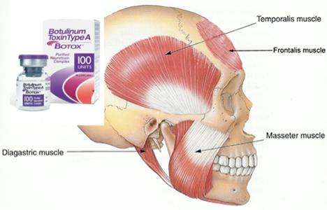 Botox for TMJ (Temporomandibular Joint)