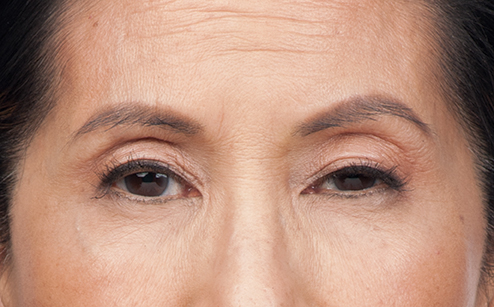 After Botox - Front