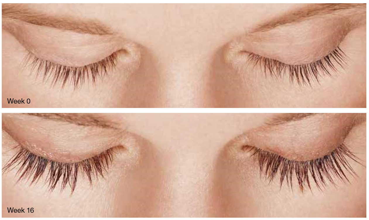 Before and After Latisse - Eyes Closed