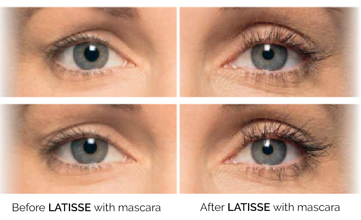 Before and After Latisse - Eyes Open