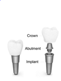 Figure 1: Crown Abutment Implant