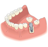 Figure 2: Dental Implant