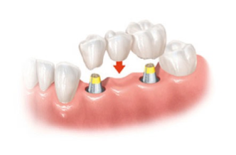 Figure 3: Dental Implant