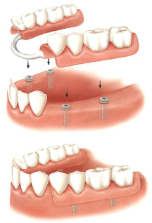 Figure 4: Dental Implant