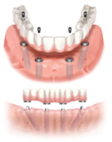 Figure 5: Dental Implant