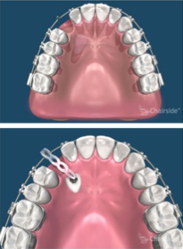 Expose and Bond/Impacted Canine Tooth Surgery